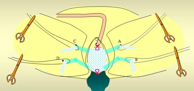経膣メッシュ手術(TVM)